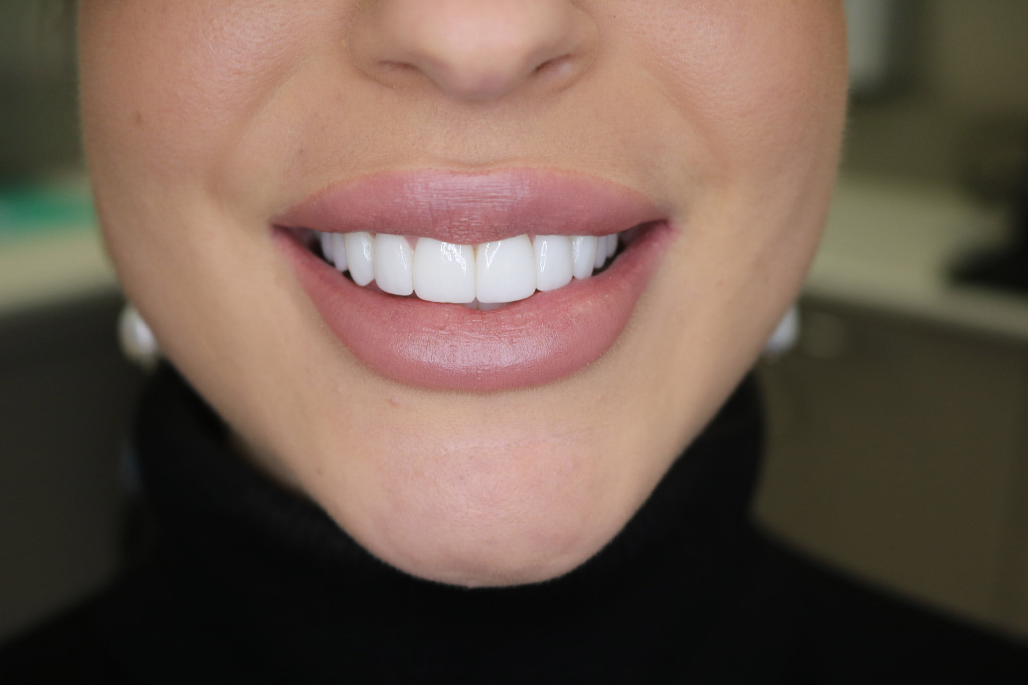 Aleks new smile by The Smile Clinique